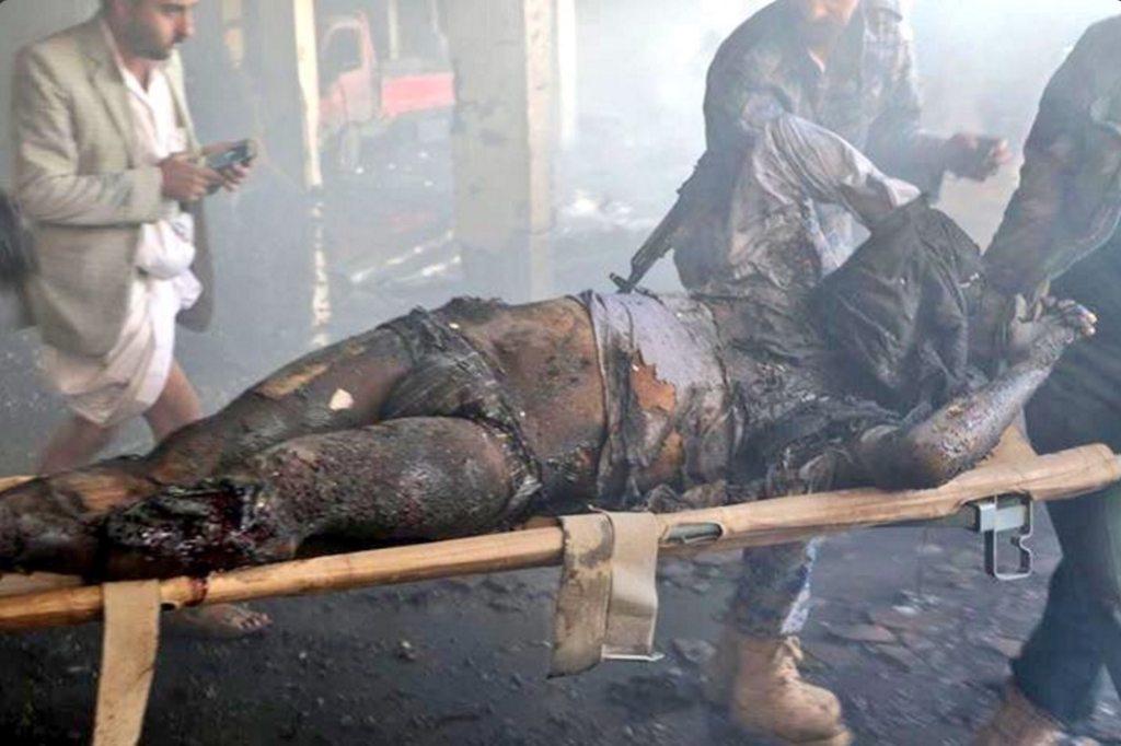 Image Yemen Sana'a Saudi airstrike OCT8